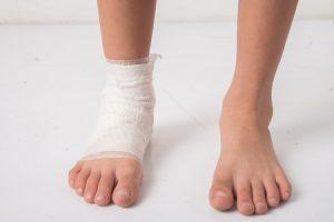 捻挫した子供の足